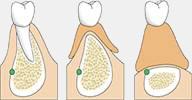 greffe osseuse