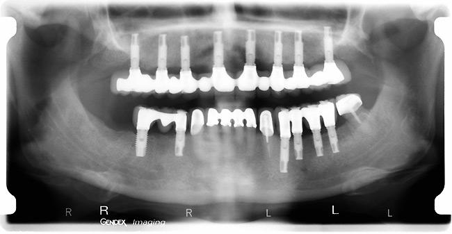 greffes osseuses cabinet dentaire du docteur laurent beaup re port grimaud dentiste saint tropez. Black Bedroom Furniture Sets. Home Design Ideas
